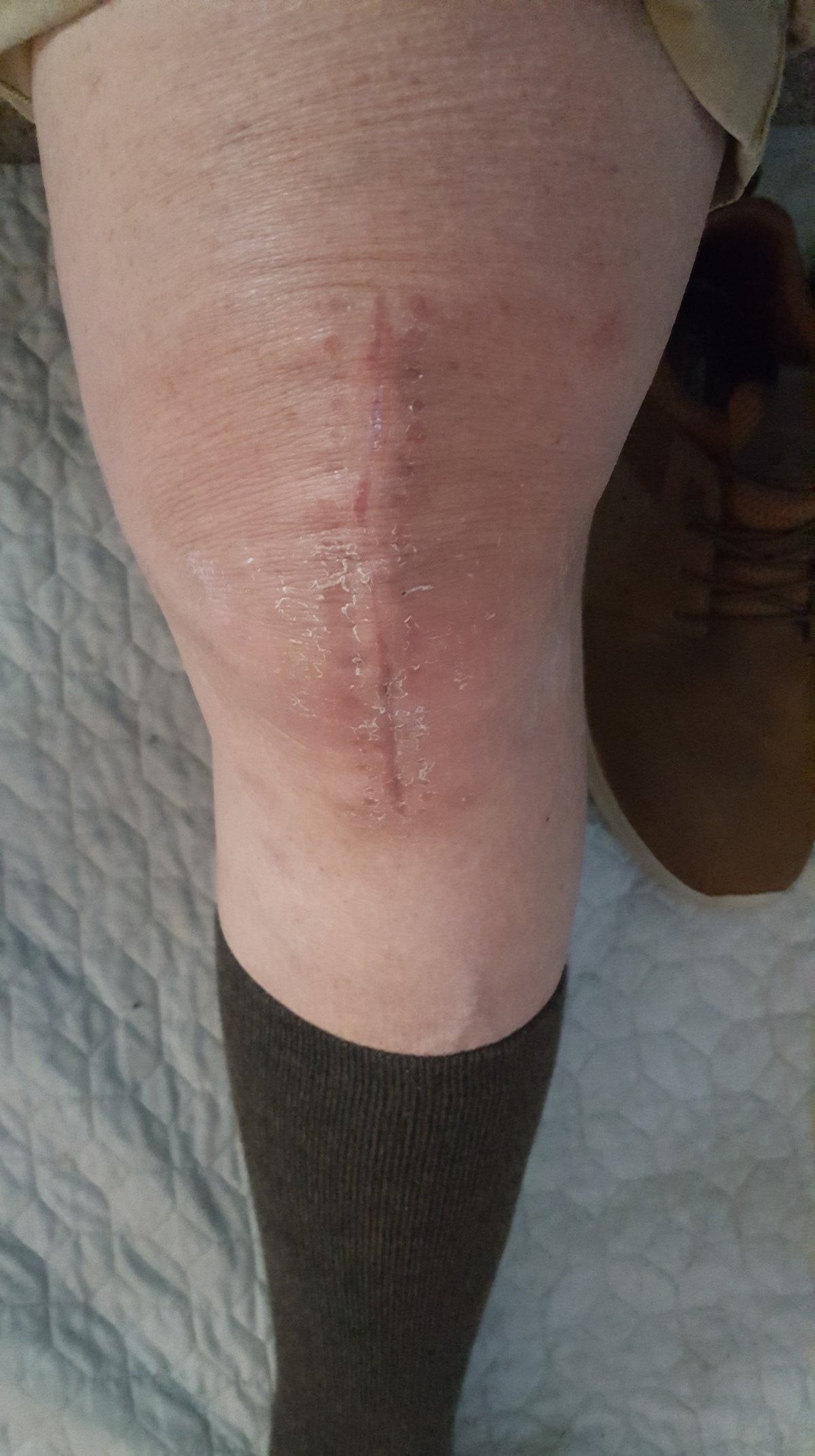 UPDATE: Kneecap Healing, If Not Quite Fast Enough For YoursTruly
